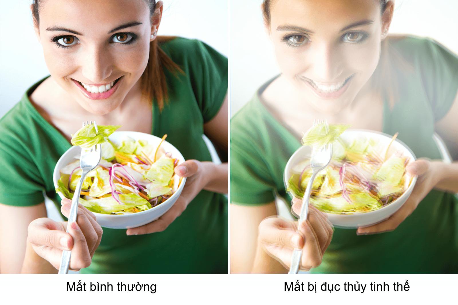 Can-chuan-bi-chi-phi-mo-duc-thuy-tinh-the-bao-nhieu-3