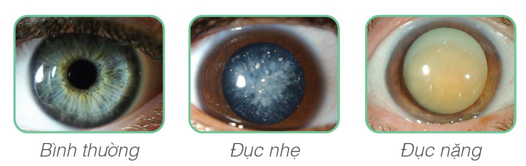 duc-thuy-tinh-the-co-chua-duoc-khong-1
