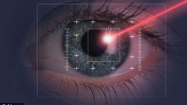 mo-cuom-mat-bang-laser-duoc-thuc-hien-nhu-the-nao-2