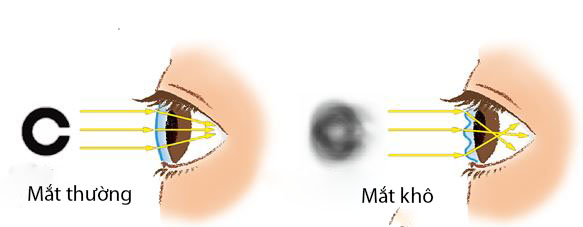 phong-kham-kho-mat-3